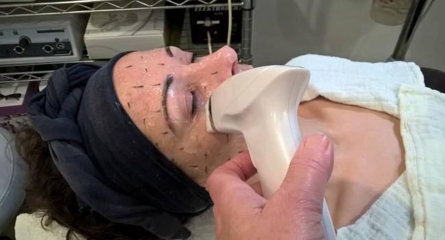 Thermage Proffessional kezelés – Arcfiatalítás műtét nélkül!